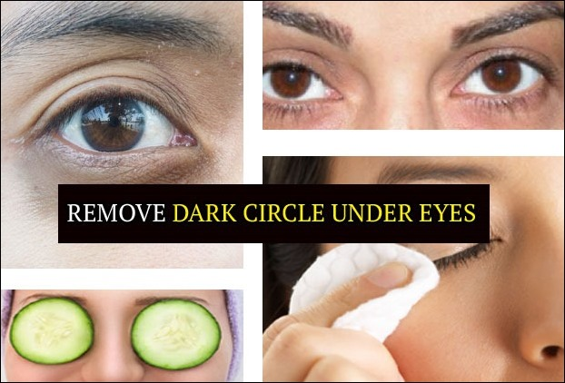 10 powerful home remedies to get rid of dark circles under eyes instantly