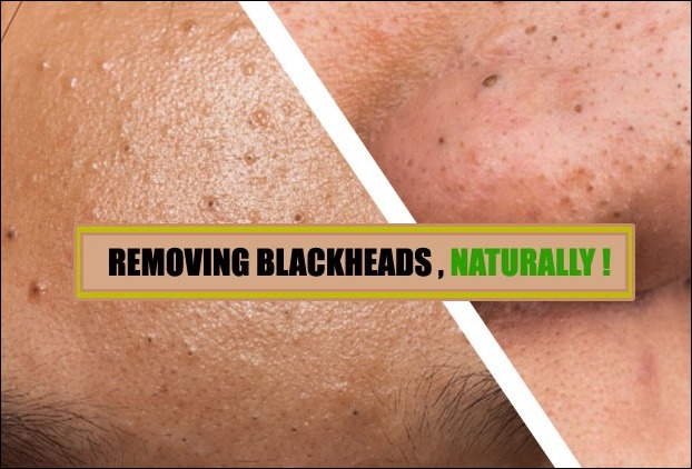 How to remove blackheads from nose naturally - 7 Best Methods