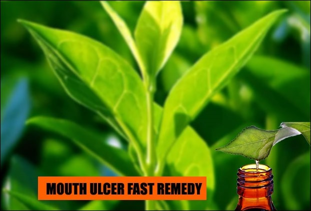 Tea-tree oil's has fast pain relieving and healing properties in mouth ulcer