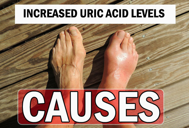 Causes of Increased Uric Acid Levels in Human Body