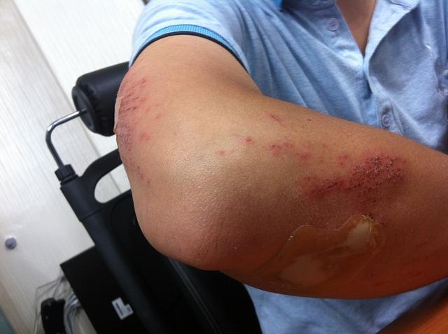 Fenugreek can treat swelling